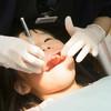 子供の虫歯は初期に進行止めよう!虫歯の画像と段階ごとの治療法、予防法まとめ
