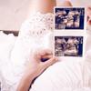 妊婦健診でもらえるエコー写真をどうやって保存する?写真をスキャンしてアルバムを作ろう!