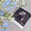妊娠11週目のエコー写真。性別はまだですが、立派な手足を確認できます