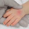 傷口に消毒+絆創膏は間違っている!?除菌のしすぎで子供の免疫力が低下することが明らかに!