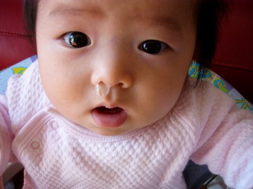 鼻が出ている赤ちゃん